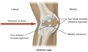 Car Accident Knee Injury