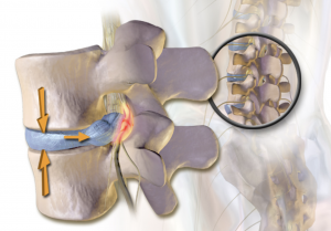 Herniated Disc from car accident